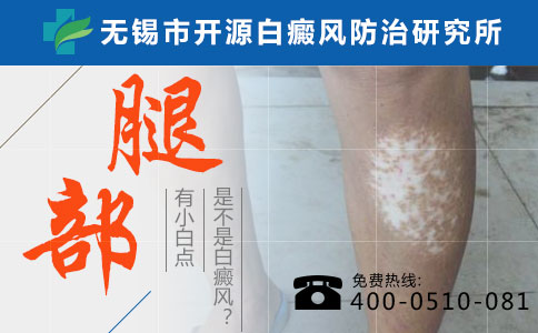 要如何治疗胸部的白癜风白斑?